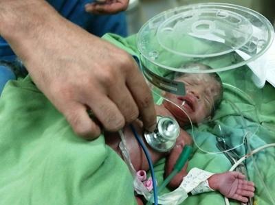 کار تیمی جراحان زبردست دانشگاه علوم پزشکی گیلان مادر باردار و نوزادش را نجات داد